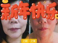 �������� Firming V Shape Face