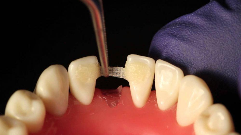 Мост протезирование зубное